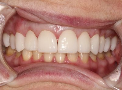 Smile Gallery - After Treatment - Dental Crowns