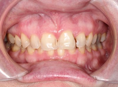 Smile Gallery - Before Treatment - Dental Crowns
