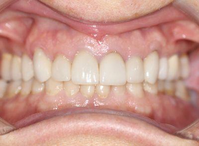 Smile Gallery - After Treatment - Veneers