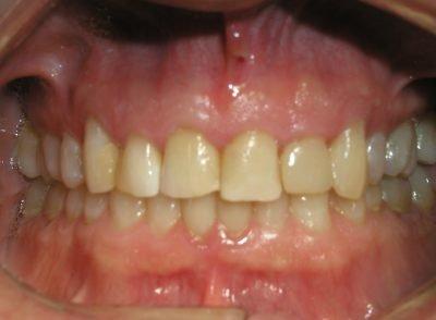 Smile Gallery - Before Treatment - Veneers