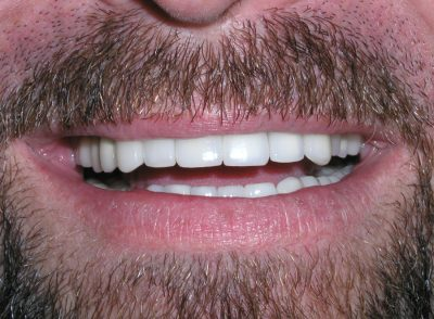Smile Gallery - After Treatment - Smile Makeover