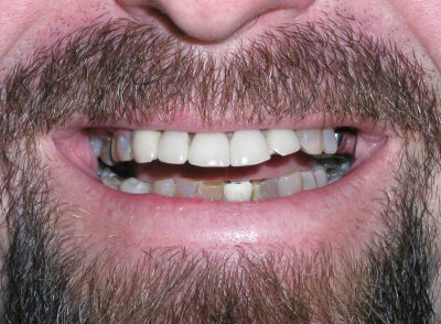 Smile Gallery - Before Treatment - Smile Makeover