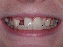 Smile Gallery - Before Treatment - Implant