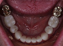 Smile Gallery - After Treatment - Full Mouth Reconstrction