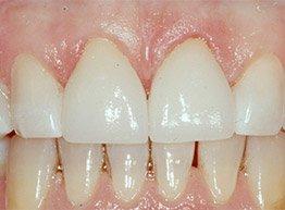 Smile Gallery - After Treatment - Porcelain Veneers