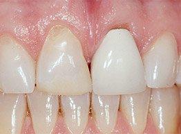 Smile Gallery - Before Treatment - Porcelain Veneers