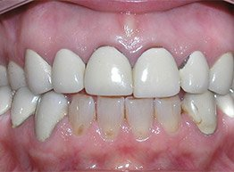 Smile Gallery - Before Treatment - Ceramic Crowns
